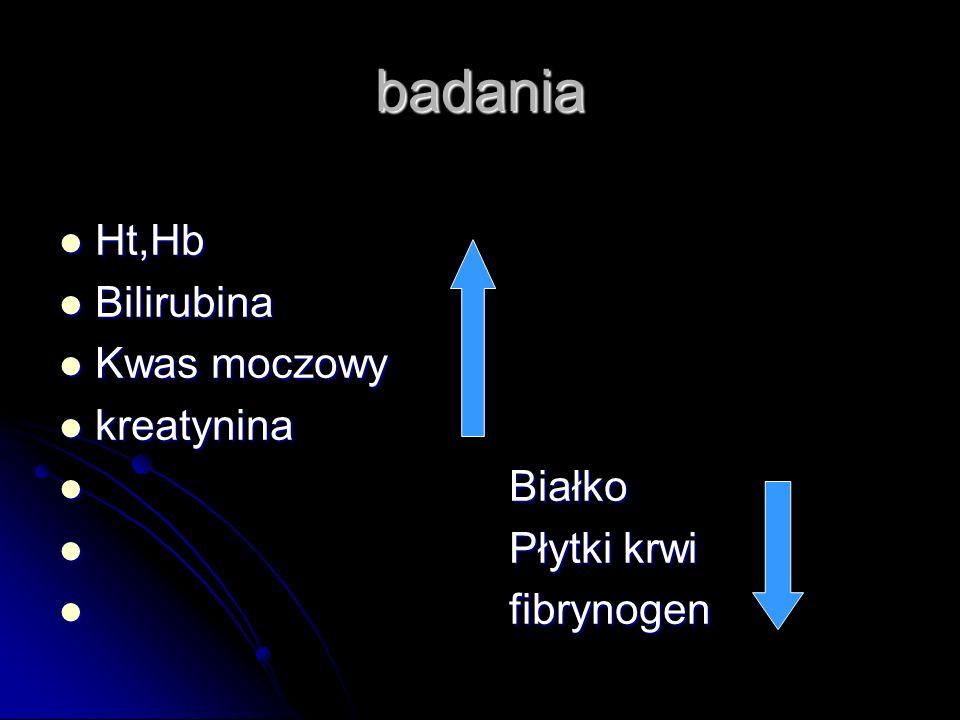 badania Ht,Hb Bilirubina Kwas moczowy kreatynina Białko Płytki krwi