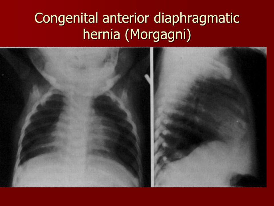 Congenital anterior diaphragmatic hernia (Morgagni)