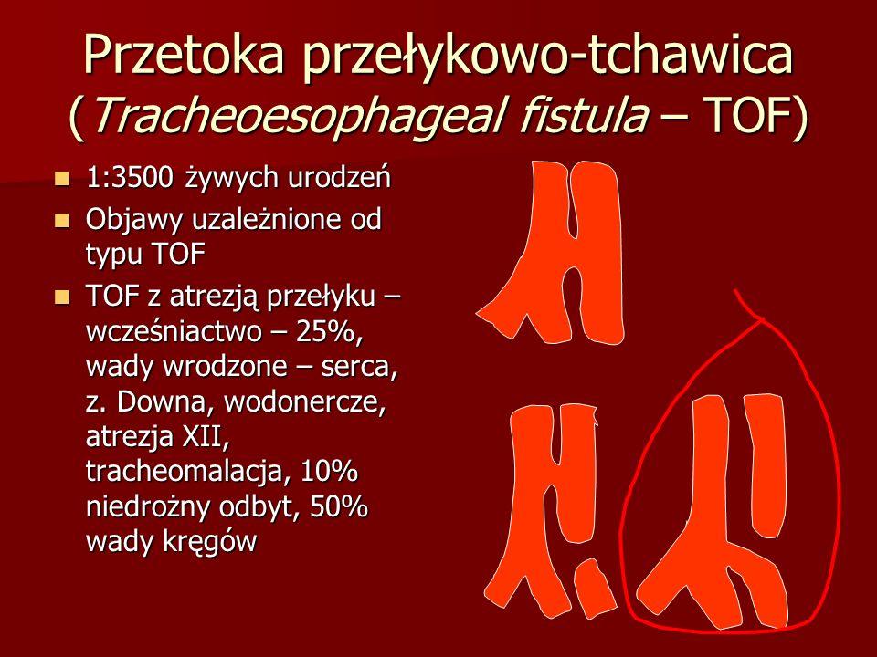 Przetoka przełykowo-tchawica (Tracheoesophageal fistula – TOF)