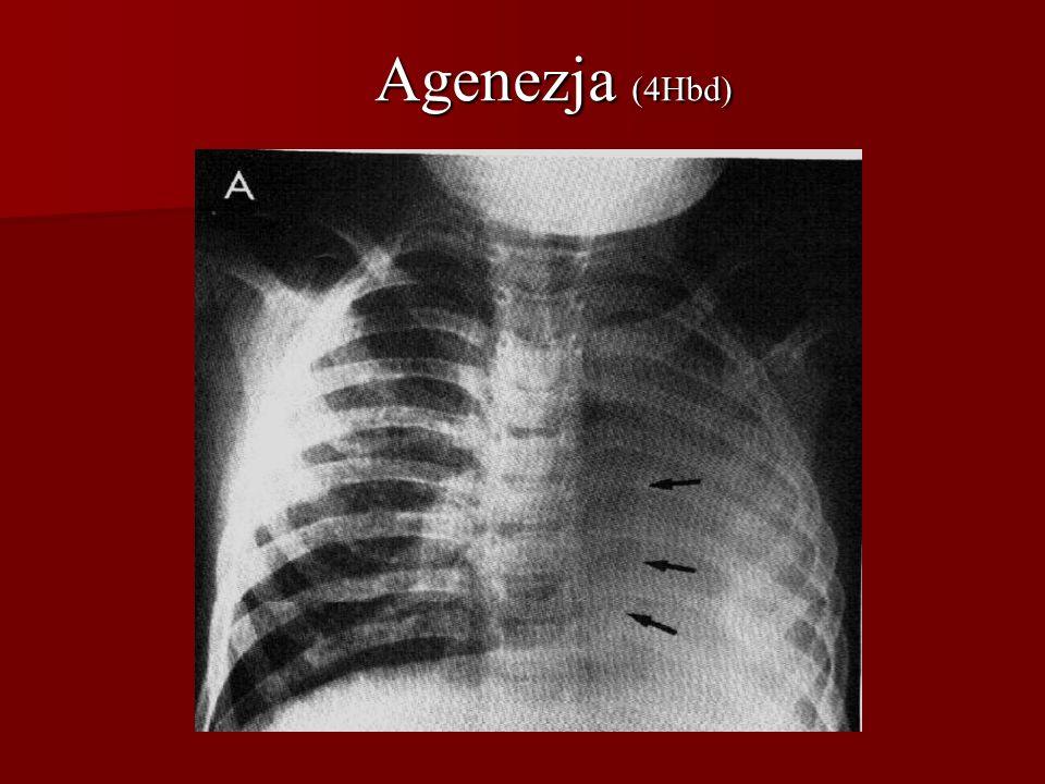 Agenezja (4Hbd)
