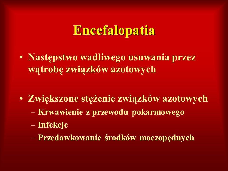 Encefalopatia Następstwo wadliwego usuwania przez wątrobę związków azotowych. Zwiększone stężenie związków azotowych.