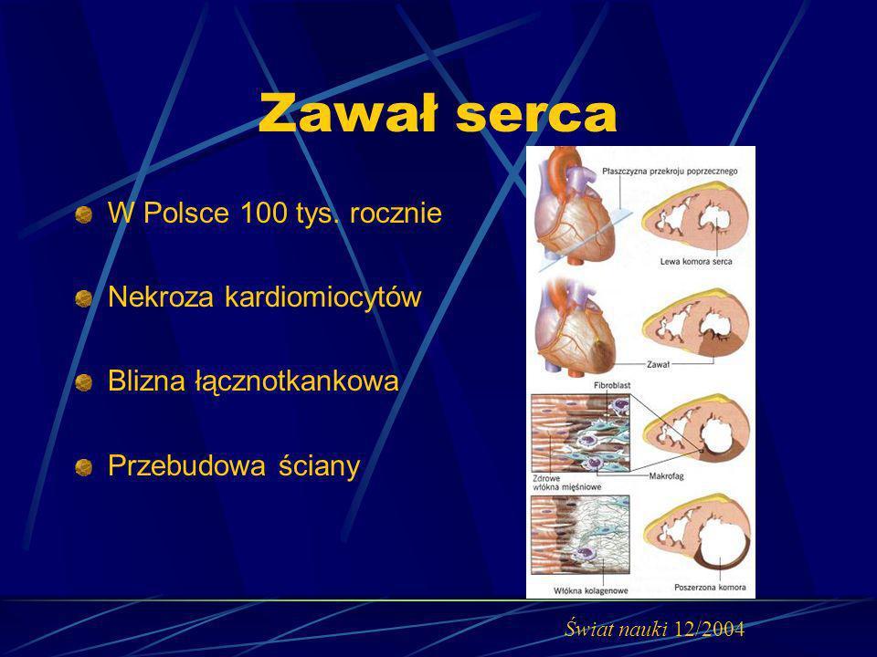 Zawał serca W Polsce 100 tys. rocznie Nekroza kardiomiocytów