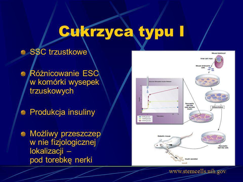 Cukrzyca typu I SSC trzustkowe