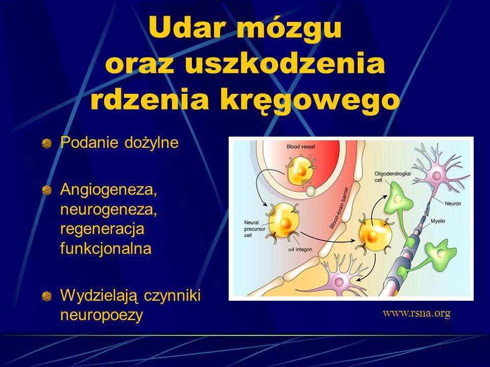 Udar mózgu oraz uszkodzenia rdzenia kręgowego