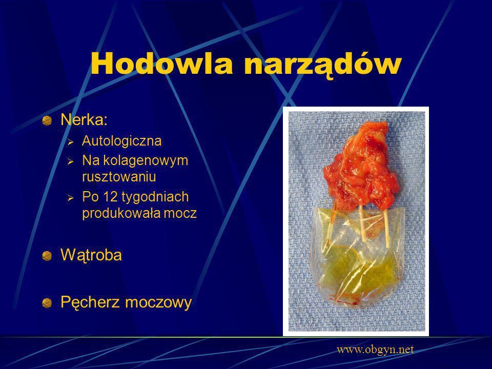 Hodowla narządów Nerka: Wątroba Pęcherz moczowy Autologiczna