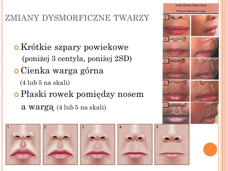 zmiany dysmorficzne twarzy