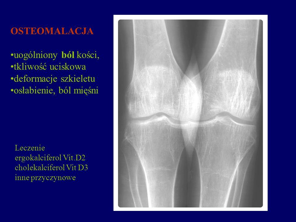 OSTEOMALACJA uogólniony ból kości, tkliwość uciskowa