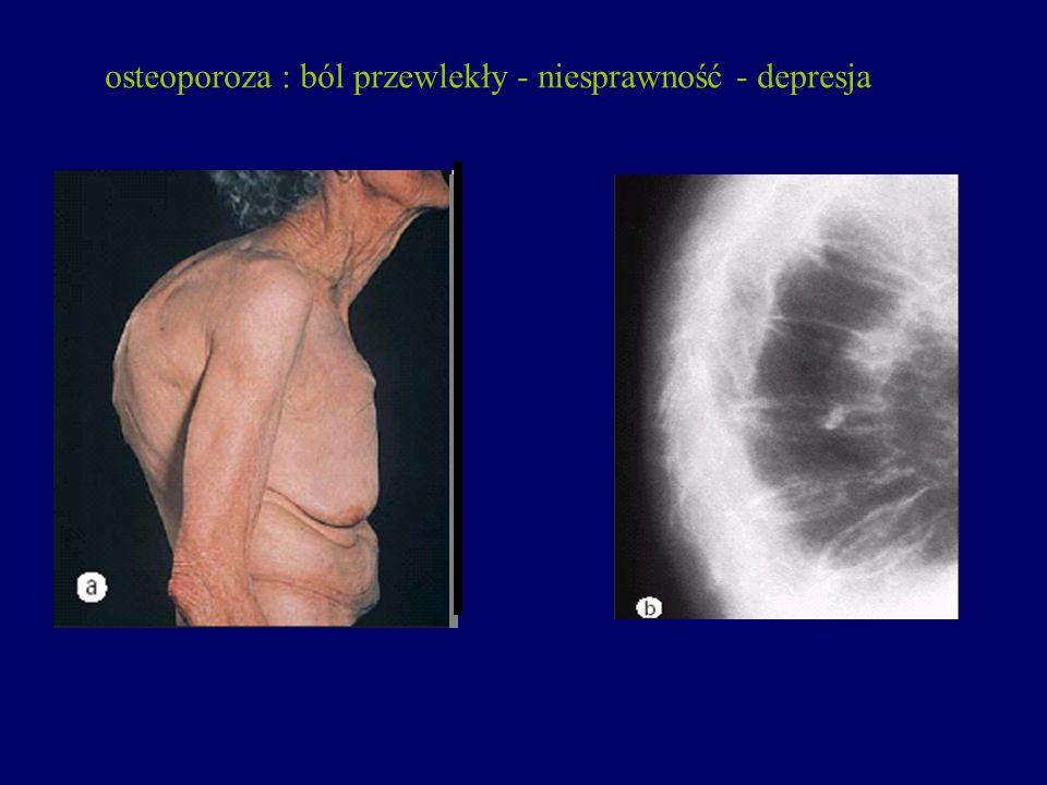 osteoporoza : ból przewlekły - niesprawność - depresja