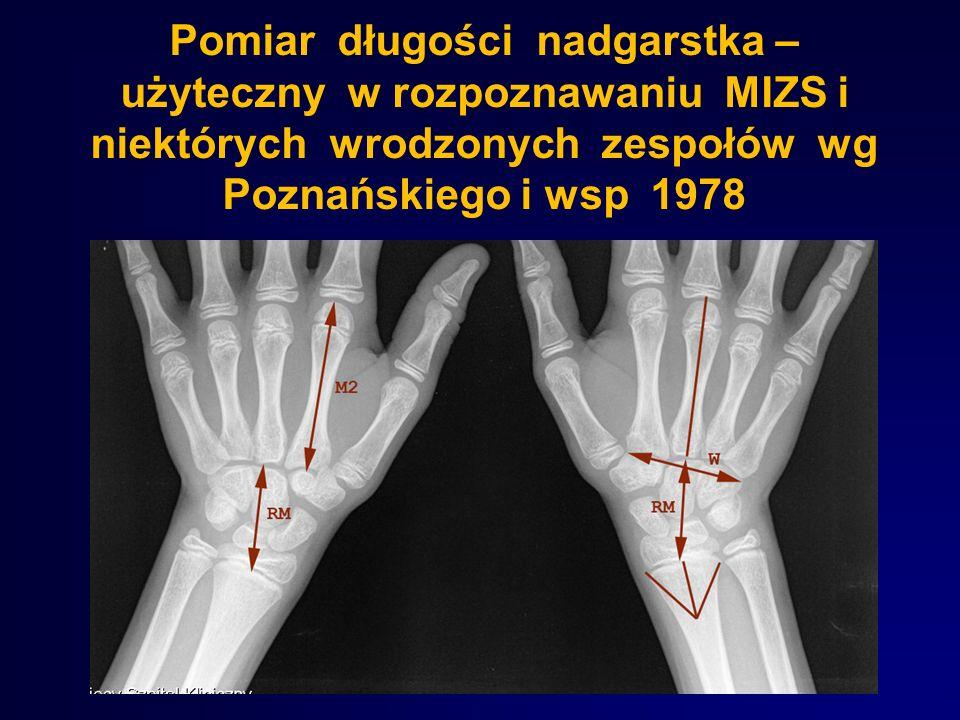Pomiar długości nadgarstka – użyteczny w rozpoznawaniu MIZS i niektórych wrodzonych zespołów wg Poznańskiego i wsp 1978