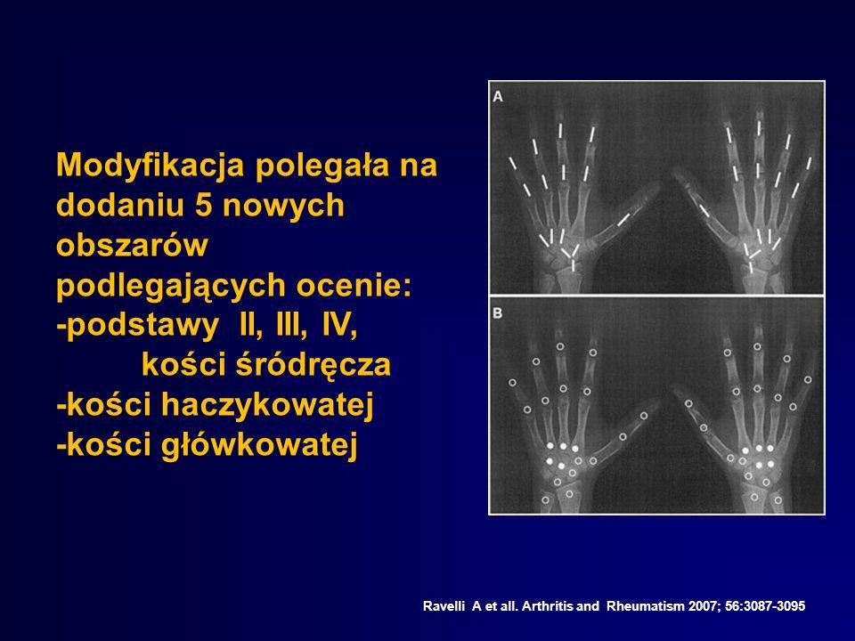 -podstawy II, III, IV, kości śródręcza -kości haczykowatej