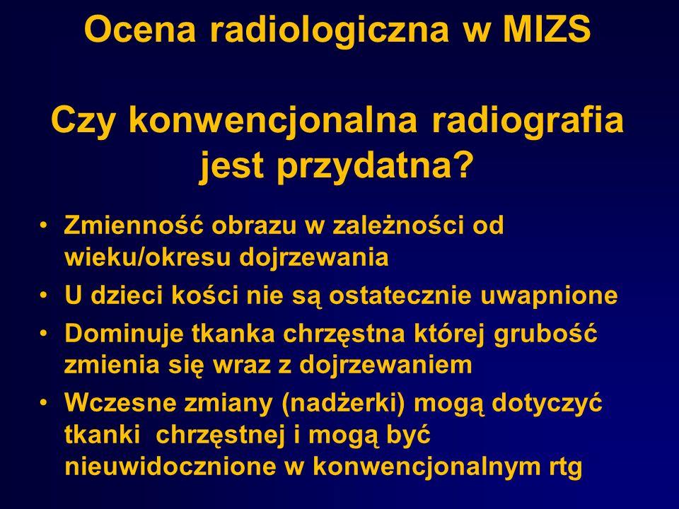 Ocena radiologiczna w MIZS Czy konwencjonalna radiografia jest przydatna