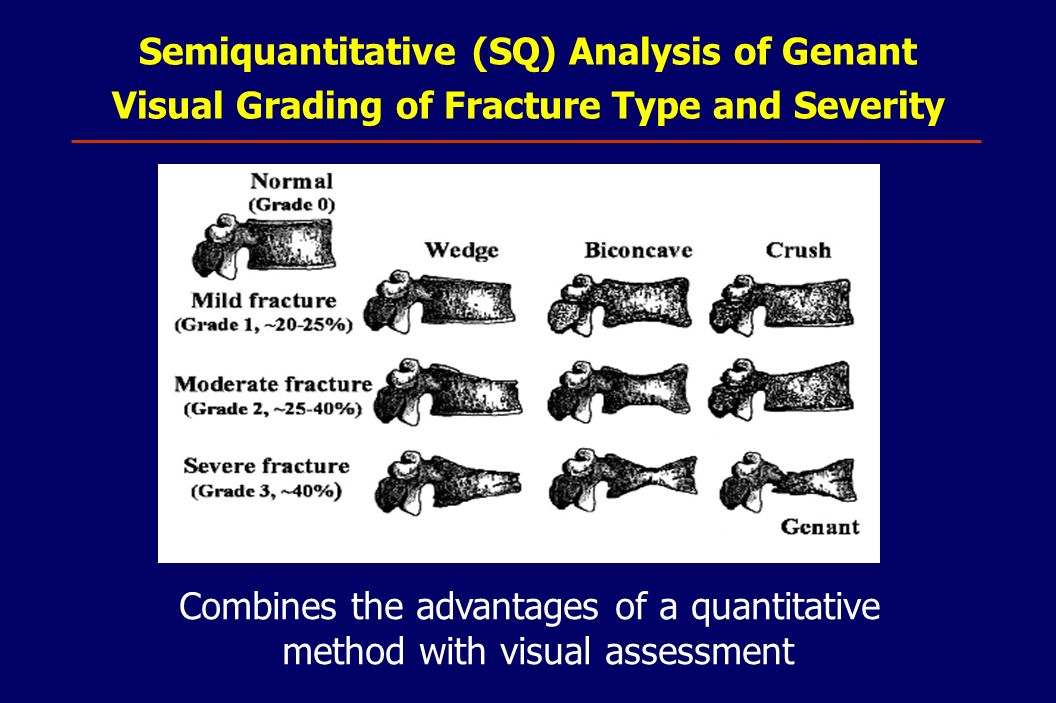Semiquantitative (SQ) Analysis of Genant