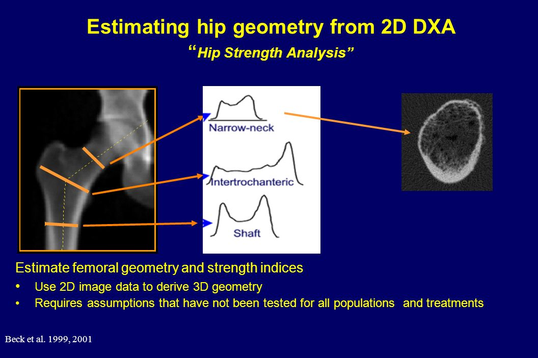 Estimating hip geometry from 2D DXA Hip Strength Analysis
