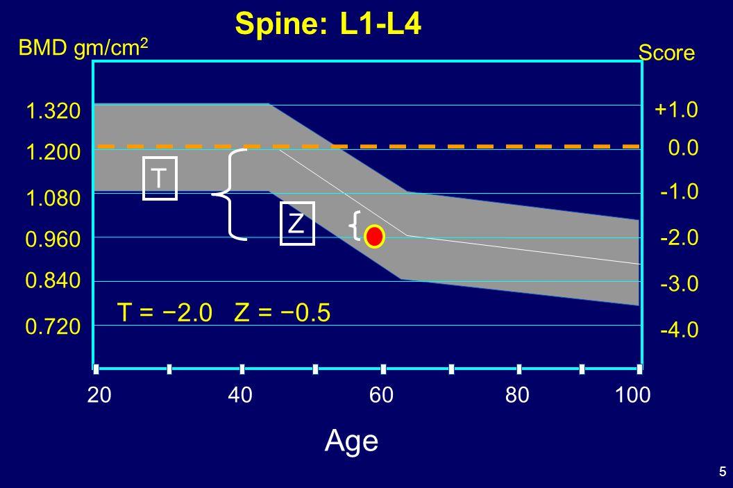 Spine: L1-L4 Age T Z T = −2.0 Z = −0.5 BMD gm/cm2 Score 1.320 +1.0 0.0