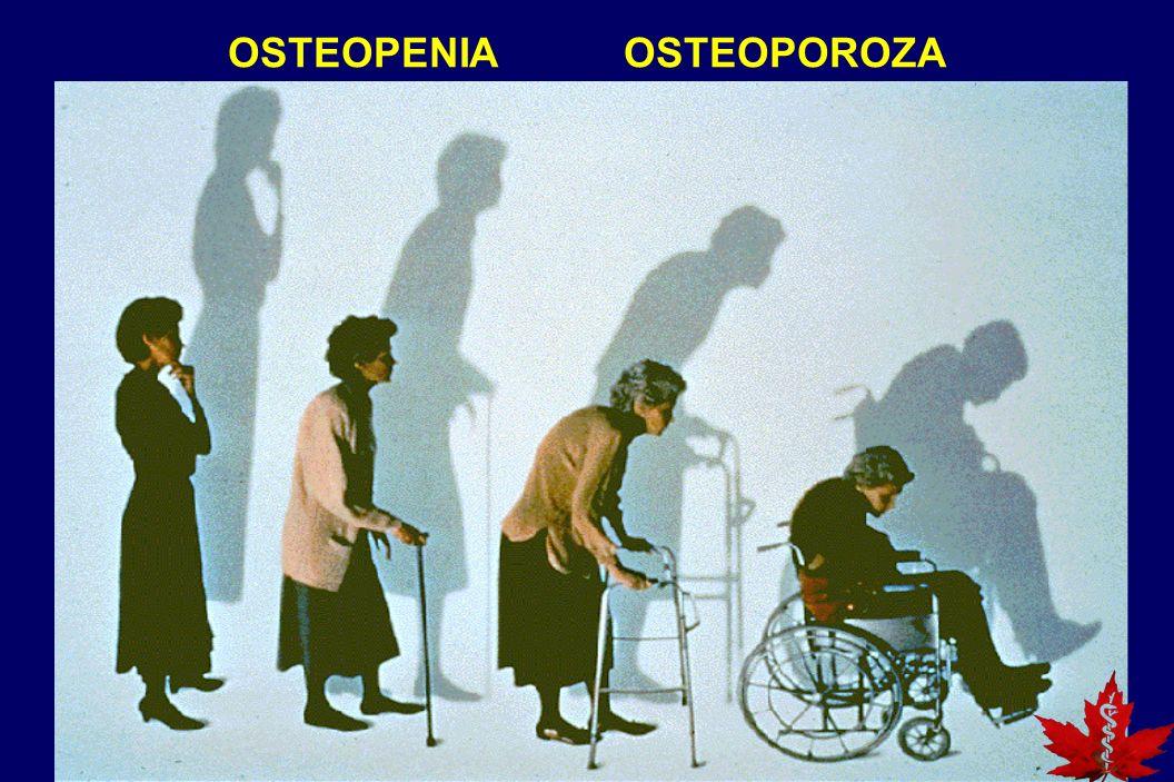 OSTEOPENIA OSTEOPOROZA