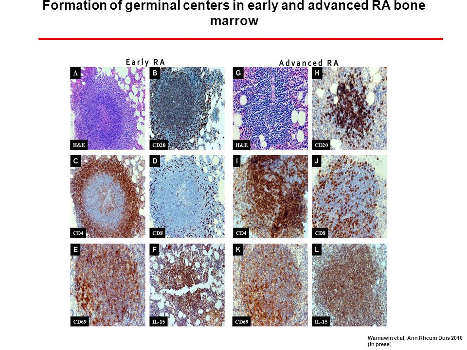 Formation of germinal centers in early and advanced RA bone marrow