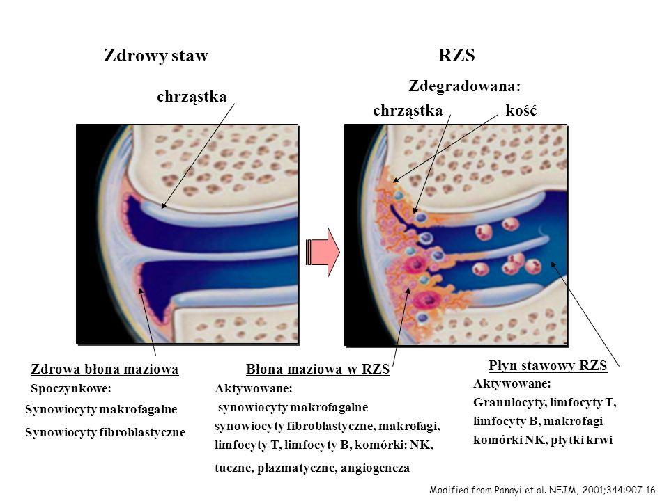 Zdrowy staw RZS Zdegradowana: chrząstka chrząstka kość