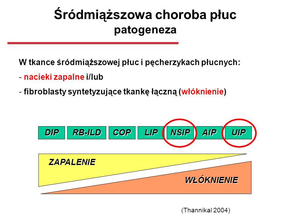 Śródmiąższowa choroba płuc patogeneza