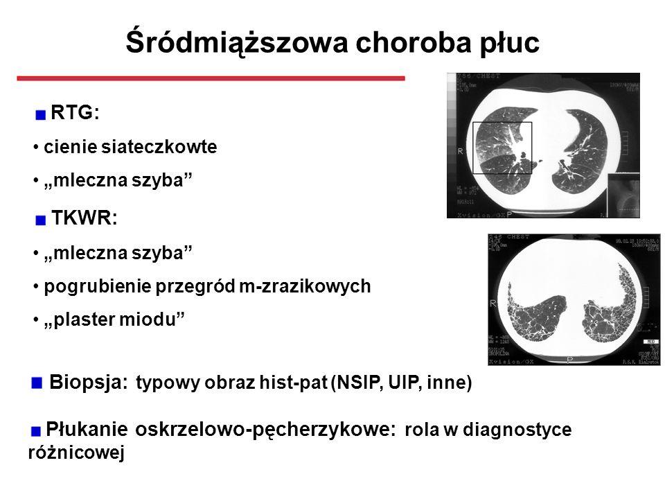 Śródmiąższowa choroba płuc
