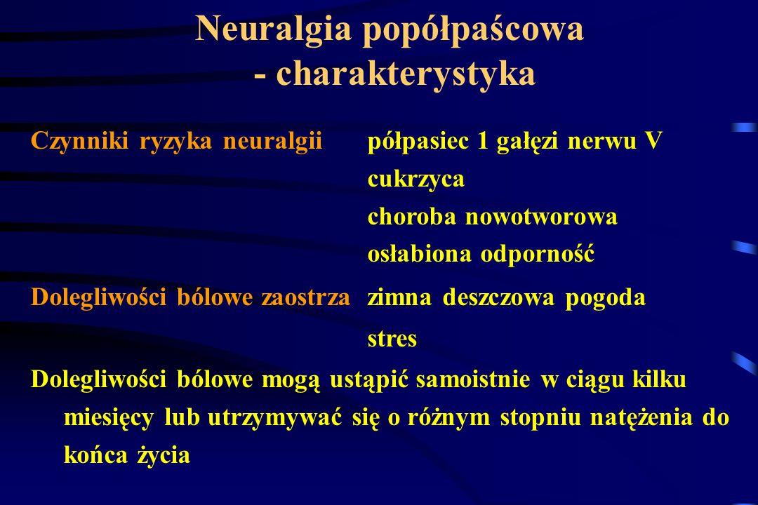 Neuralgia popółpaścowa - charakterystyka