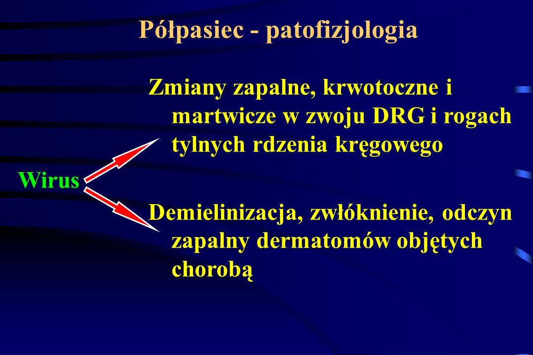 Półpasiec - patofizjologia