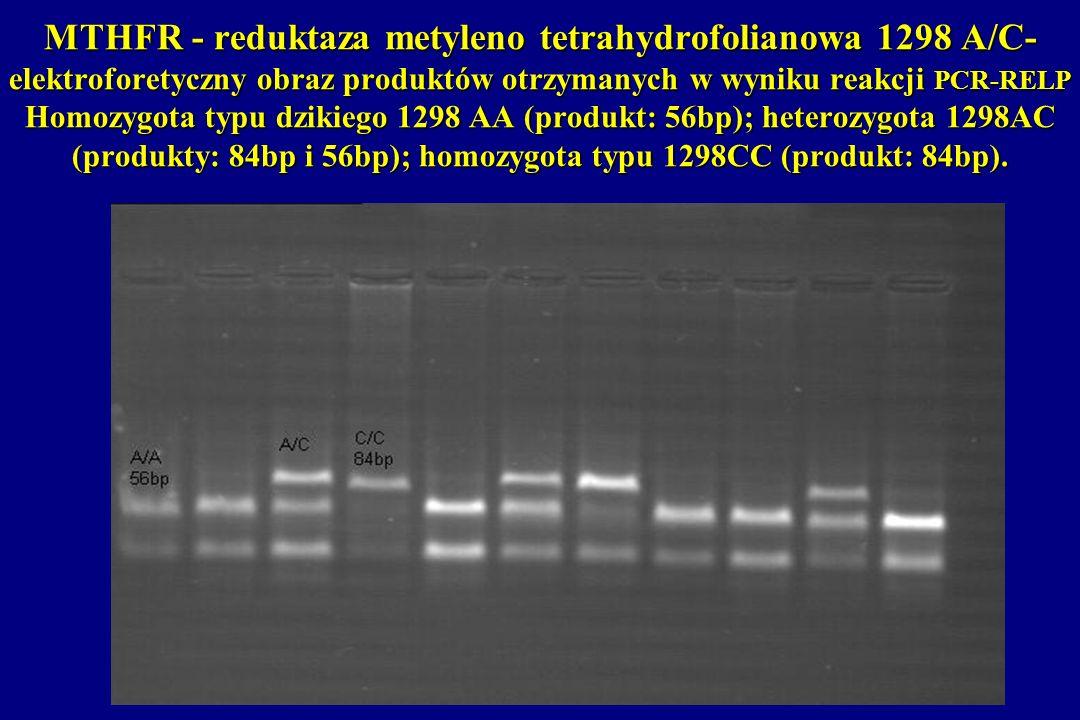 MTHFR - reduktaza metyleno tetrahydrofolianowa 1298 A/C- elektroforetyczny obraz produktów otrzymanych w wyniku reakcji PCR-RELP Homozygota typu dzikiego 1298 AA (produkt: 56bp); heterozygota 1298AC (produkty: 84bp i 56bp); homozygota typu 1298CC (produkt: 84bp).