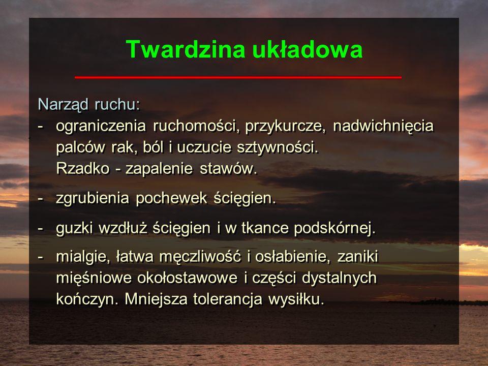 Twardzina układowa Narząd ruchu:
