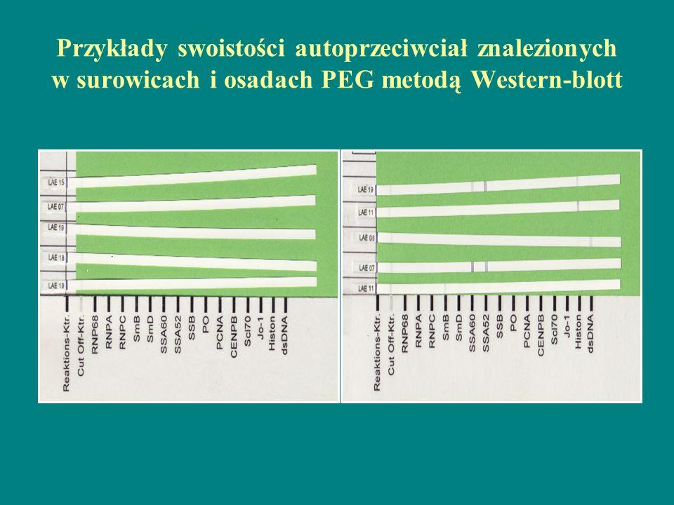 Przykłady swoistości autoprzeciwciał znalezionych w surowicach i osadach PEG metodą Western-blott
