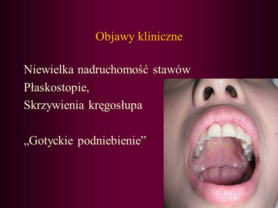 Objawy kliniczne Niewielka nadruchomość stawów. Płaskostopie, Skrzywienia kręgosłupa.