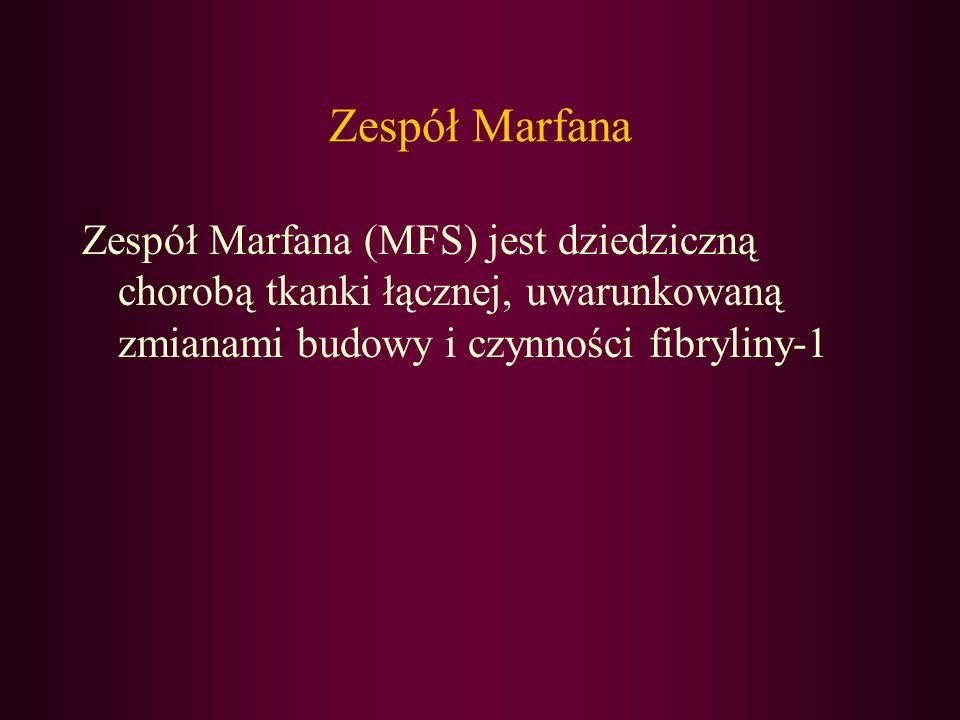 Zespół Marfana Zespół Marfana (MFS) jest dziedziczną chorobą tkanki łącznej, uwarunkowaną zmianami budowy i czynności fibryliny-1.