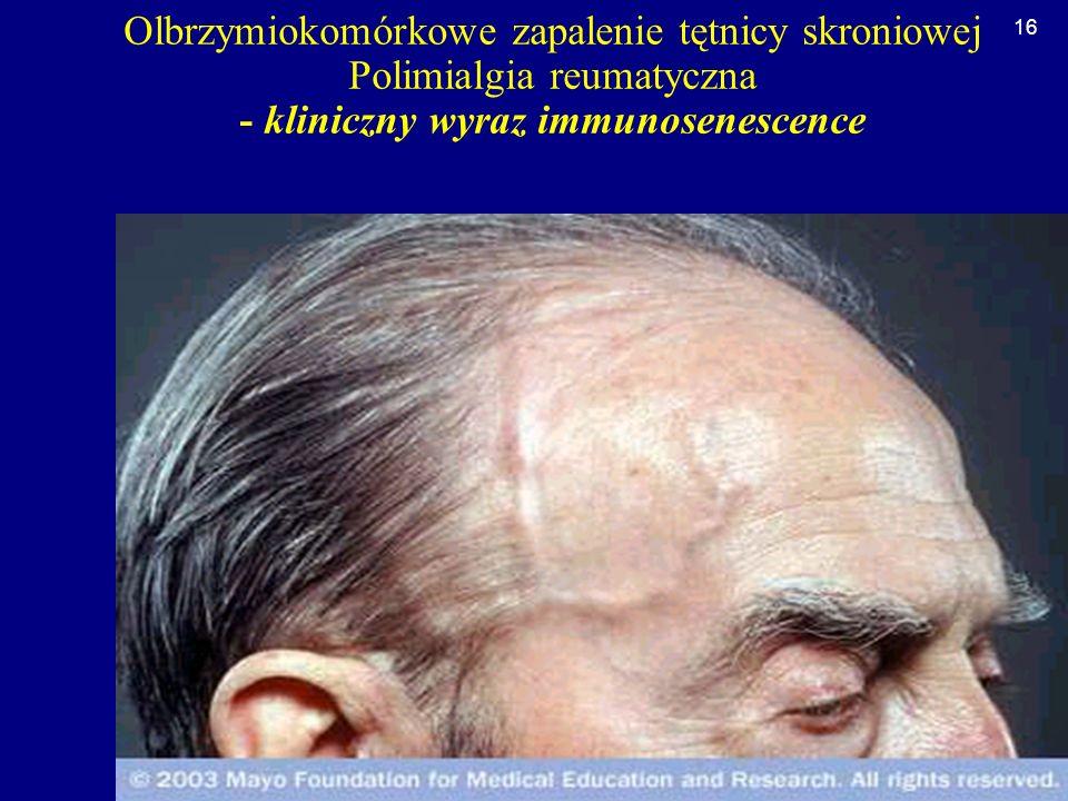 Olbrzymiokomórkowe zapalenie tętnicy skroniowej Polimialgia reumatyczna - kliniczny wyraz immunosenescence