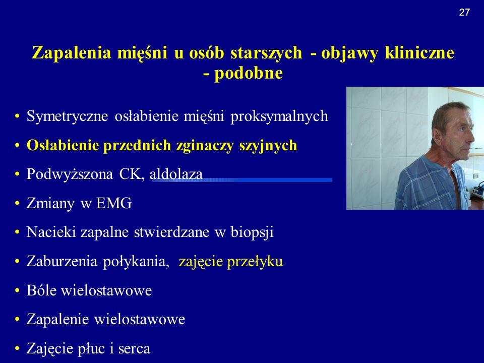 Zapalenia mięśni u osób starszych - objawy kliniczne - podobne