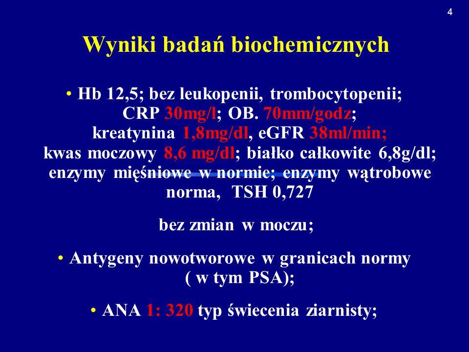 Wyniki badań biochemicznych