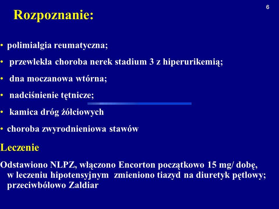 Rozpoznanie: Leczenie polimialgia reumatyczna;