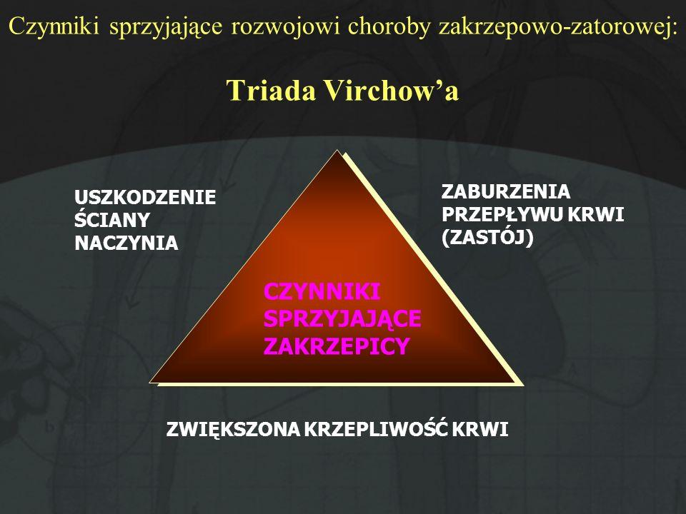 Czynniki sprzyjające rozwojowi choroby zakrzepowo-zatorowej: Triada Virchow'a