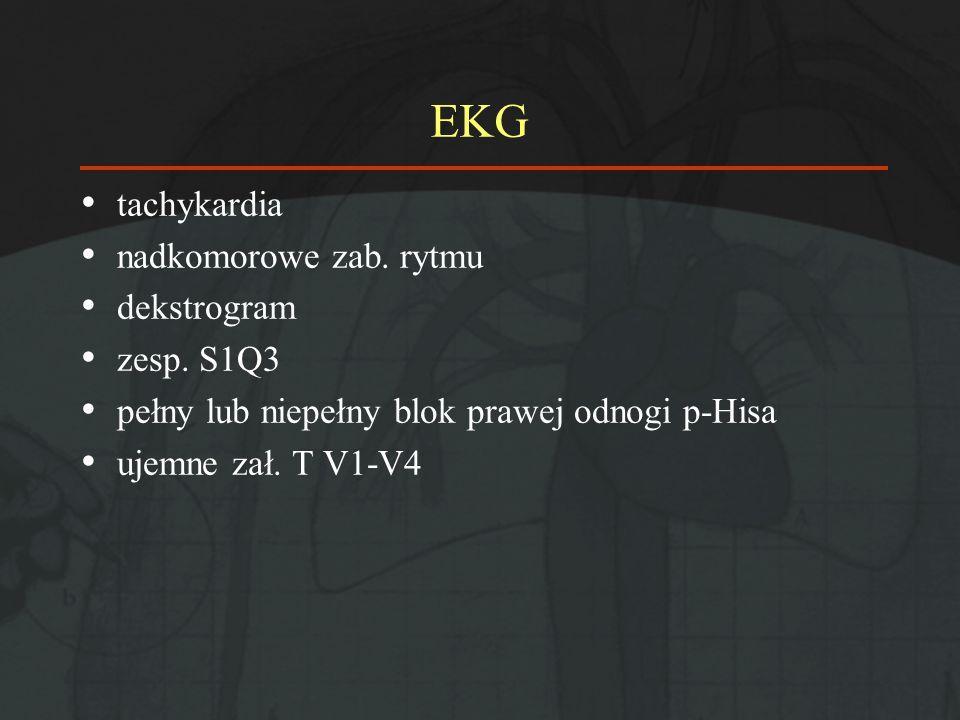 EKG tachykardia nadkomorowe zab. rytmu dekstrogram zesp. S1Q3