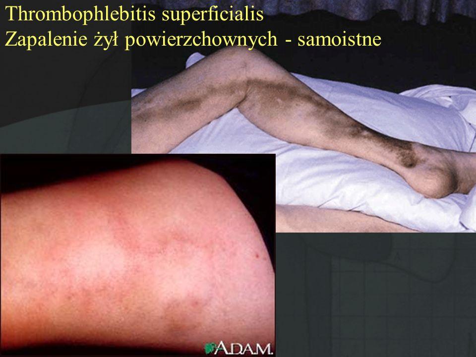 Thrombophlebitis superficialis Zapalenie żył powierzchownych - samoistne