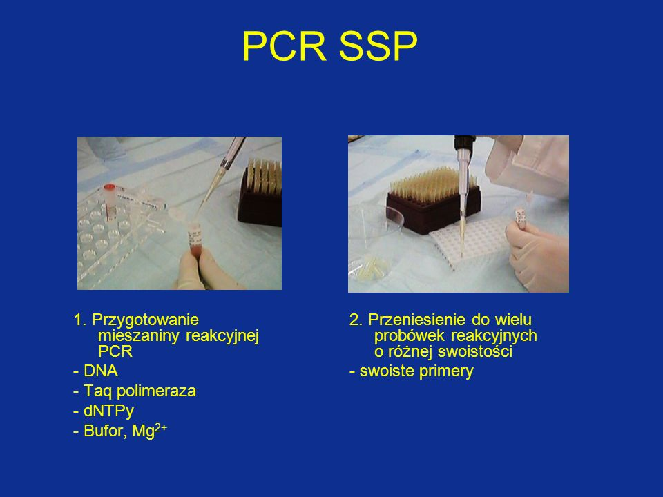 PCR SSP 1. Przygotowanie mieszaniny reakcyjnej PCR - DNA