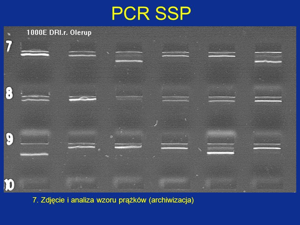 PCR SSP 7. Zdjęcie i analiza wzoru prążków (archiwizacja)