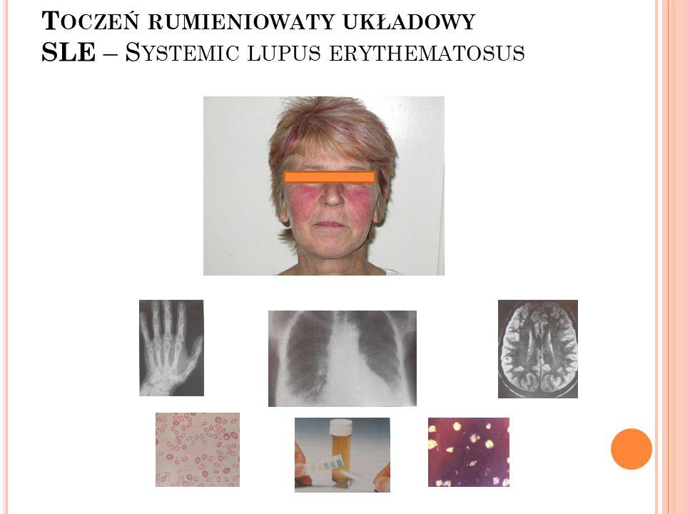 Toczeń rumieniowaty układowy SLE – Systemic lupus erythematosus
