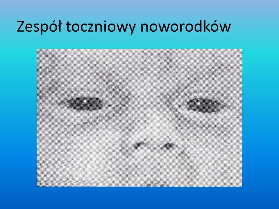 Zespół toczniowy noworodków