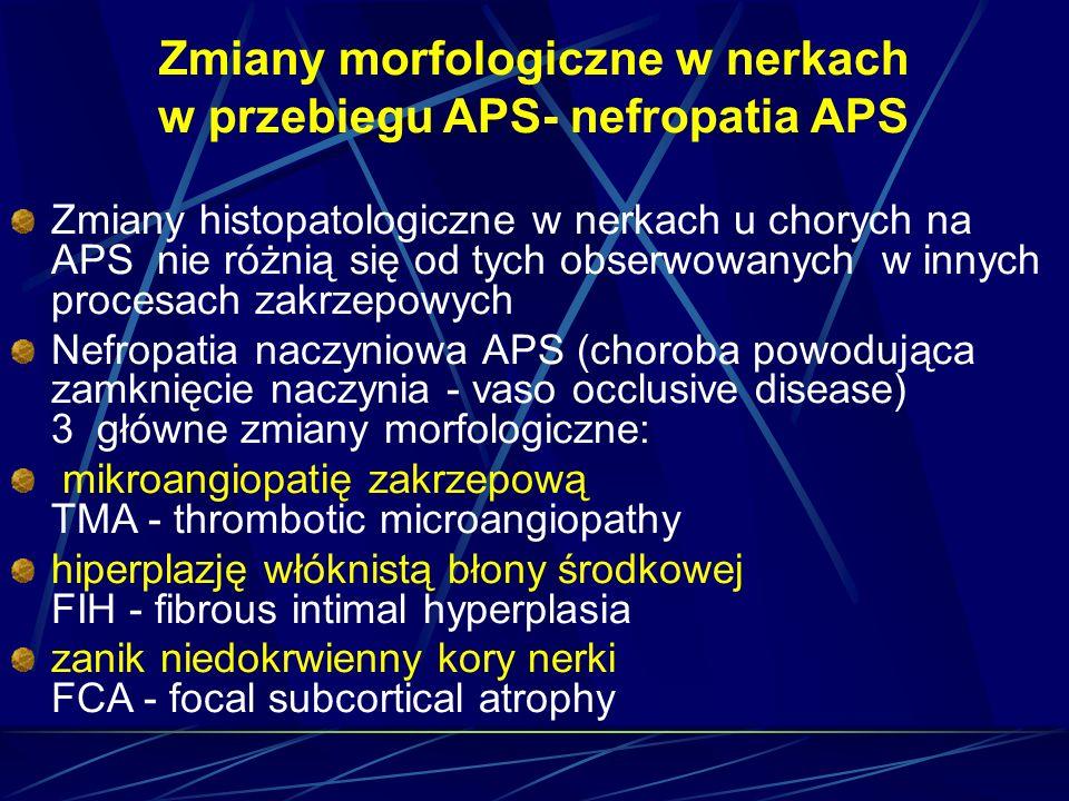 Zmiany morfologiczne w nerkach w przebiegu APS- nefropatia APS