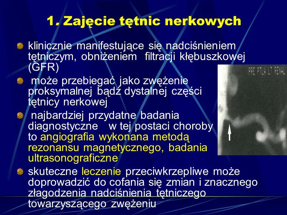 1. Zajęcie tętnic nerkowych