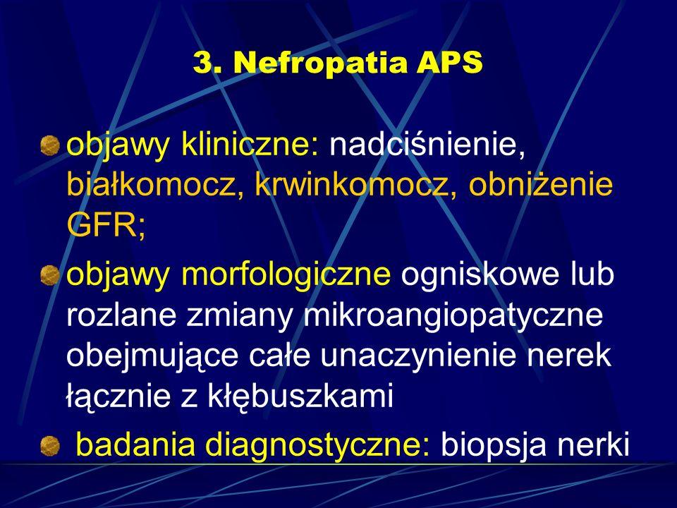 badania diagnostyczne: biopsja nerki