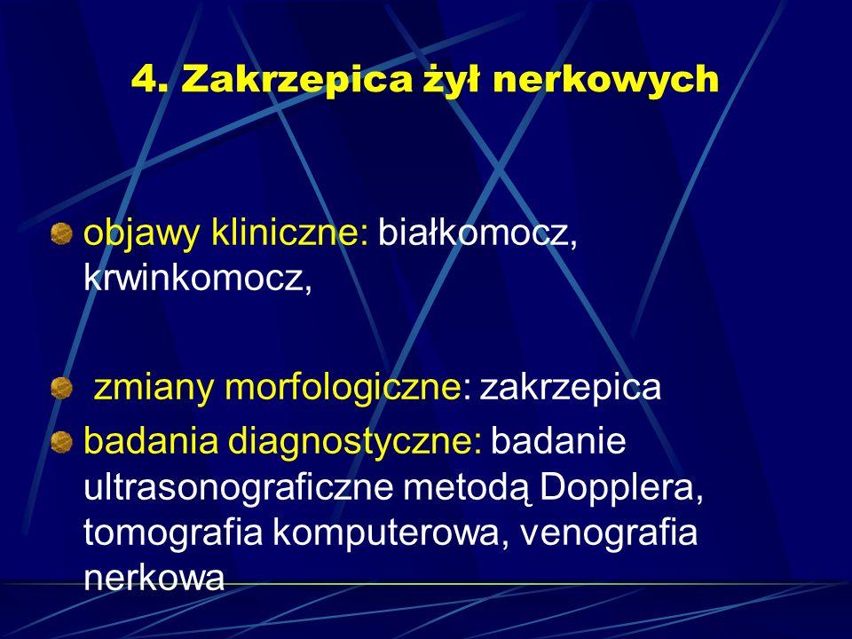 4. Zakrzepica żył nerkowych