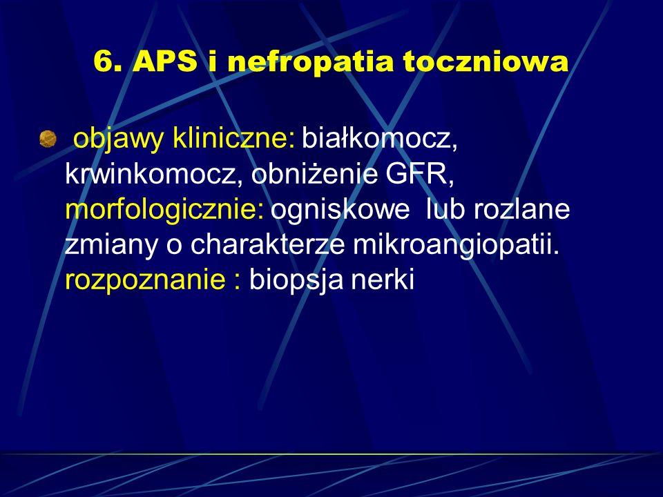 6. APS i nefropatia toczniowa