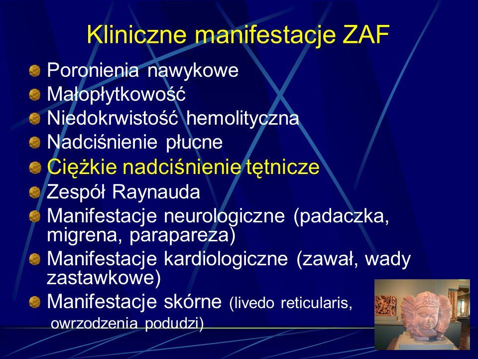 Kliniczne manifestacje ZAF