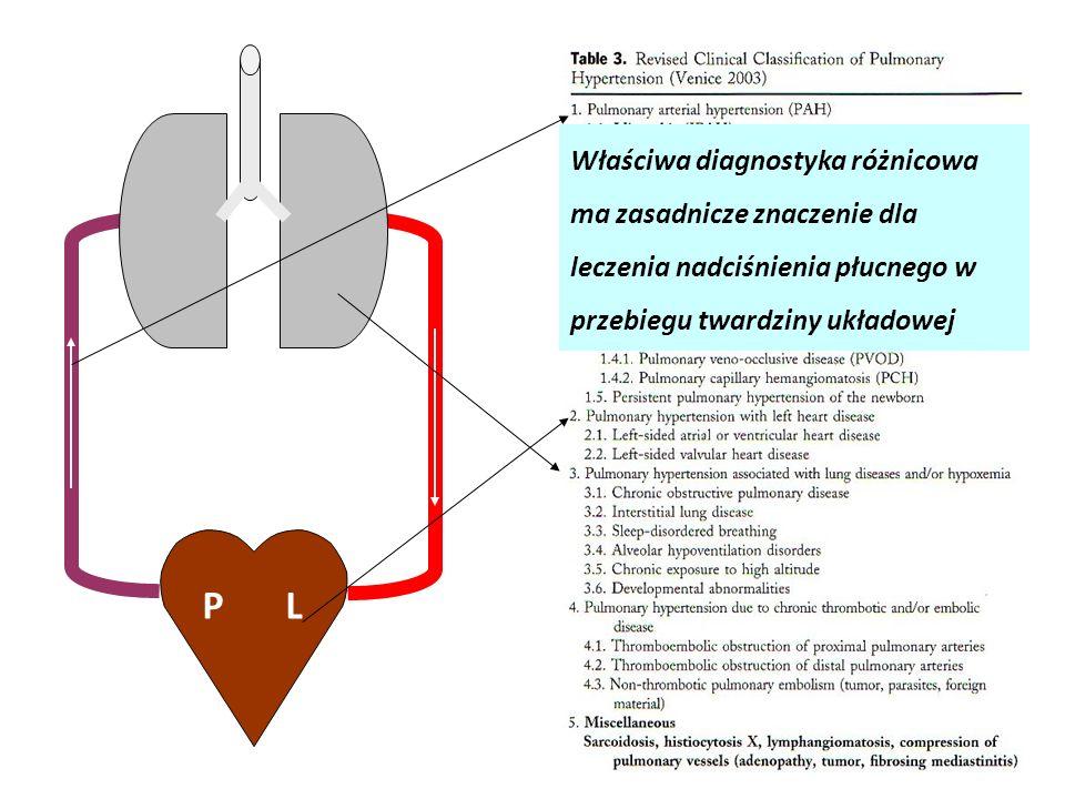 Właściwa diagnostyka różnicowa ma zasadnicze znaczenie dla leczenia nadciśnienia płucnego w przebiegu twardziny układowej