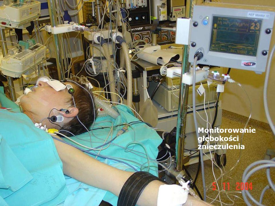 Monitorowanie głębokości znieczulenia