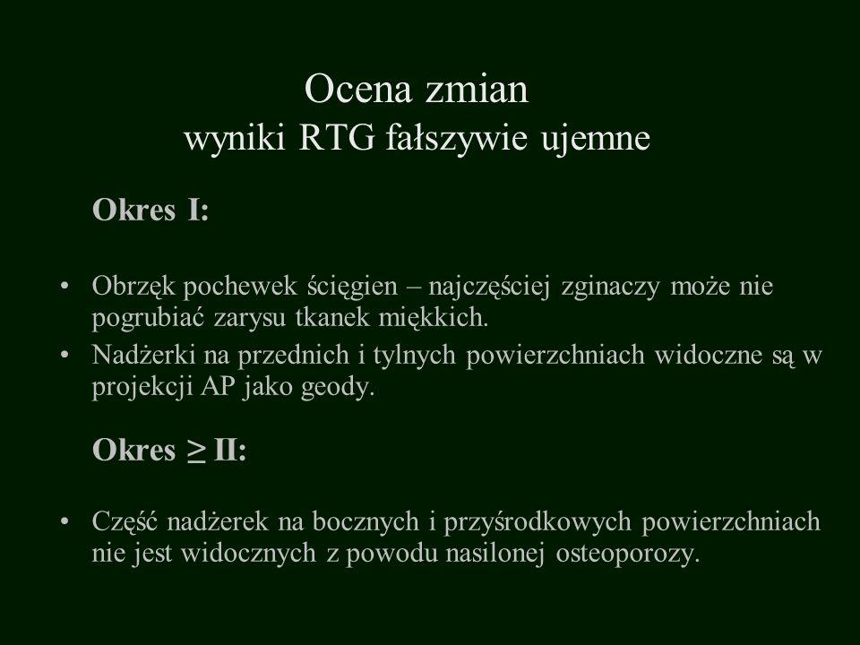 Ocena zmian wyniki RTG fałszywie ujemne
